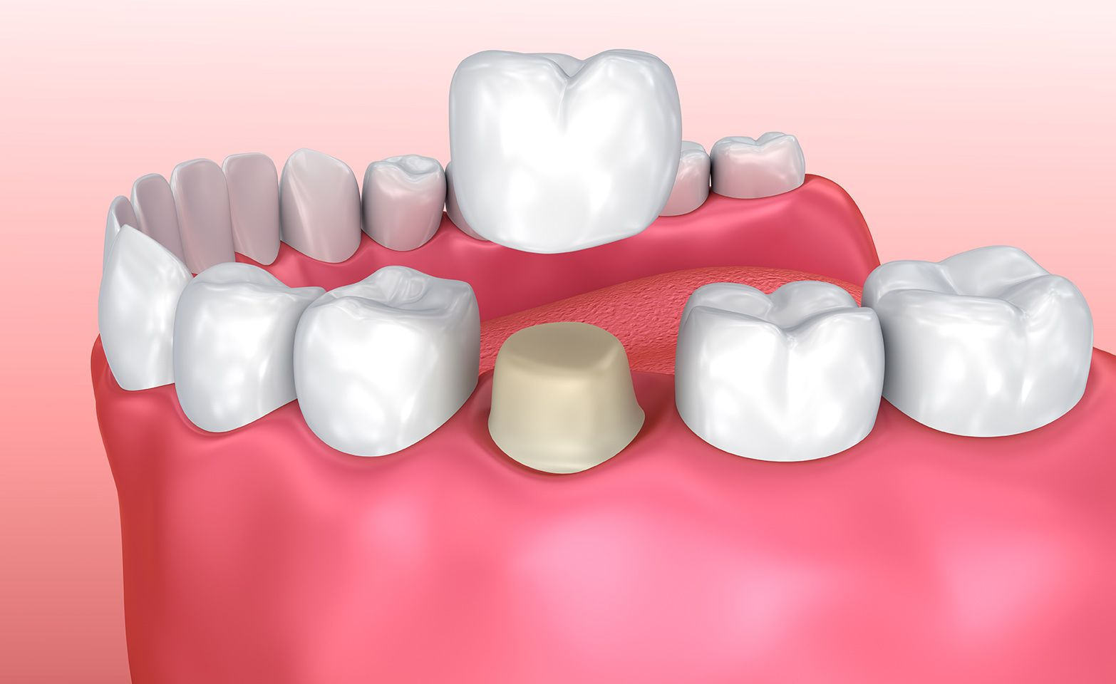 Illustration or prepared tooth and dental crown