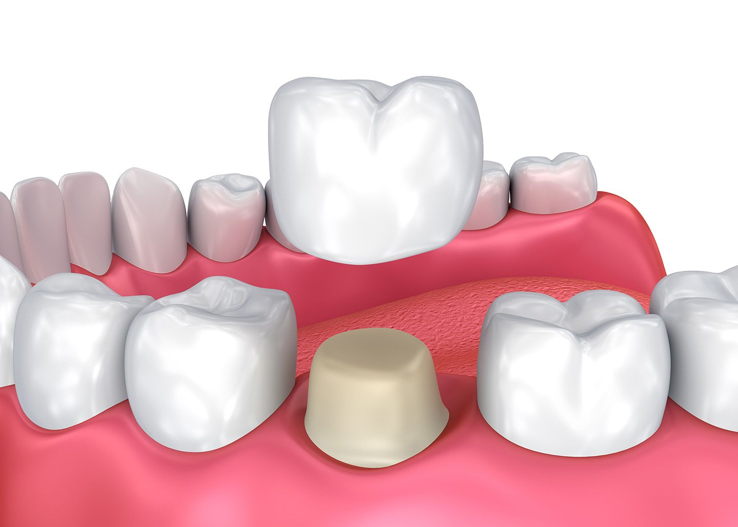 Tooth-colored dental crown
