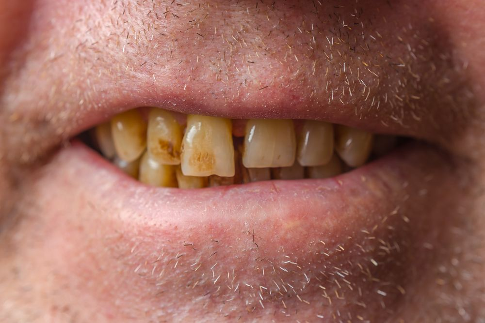 Severely discolored and worn teeth