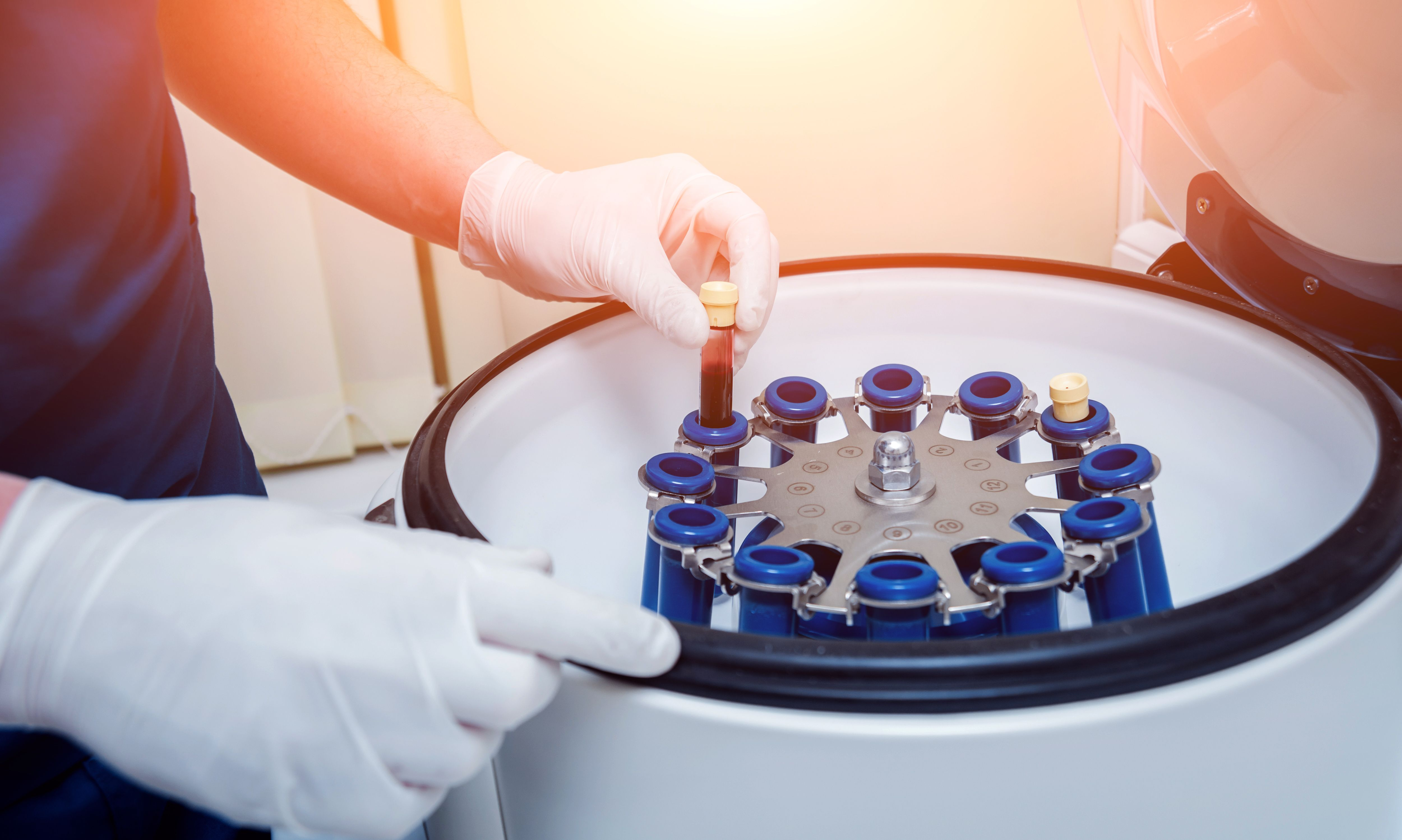 Blood samples in a centrifuge