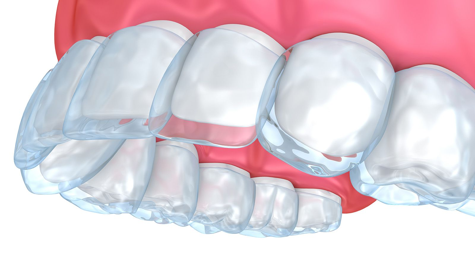 Invisalign orthodontic aligners in place
