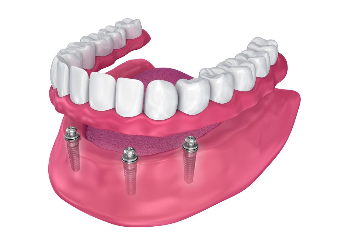 Implant-supported full dentures