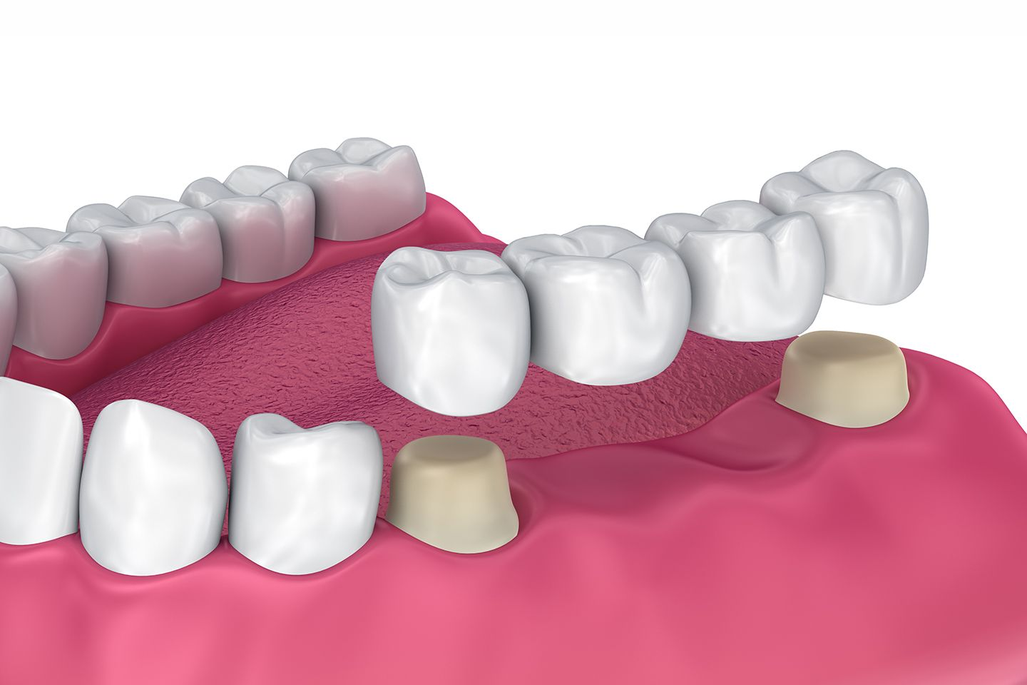 Dental bridge for the back teeth