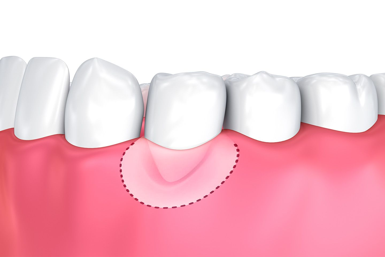 Illustration of gum graft