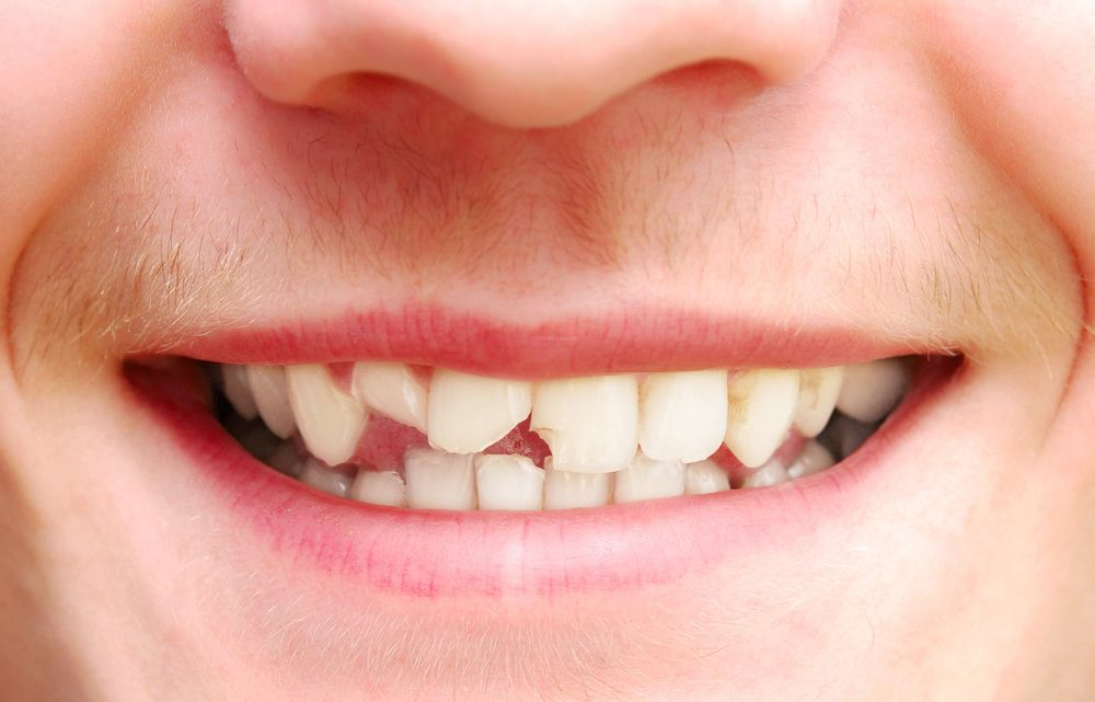 A close-up of chipped teeth
