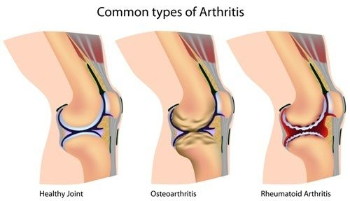 Different kinds of arthritis