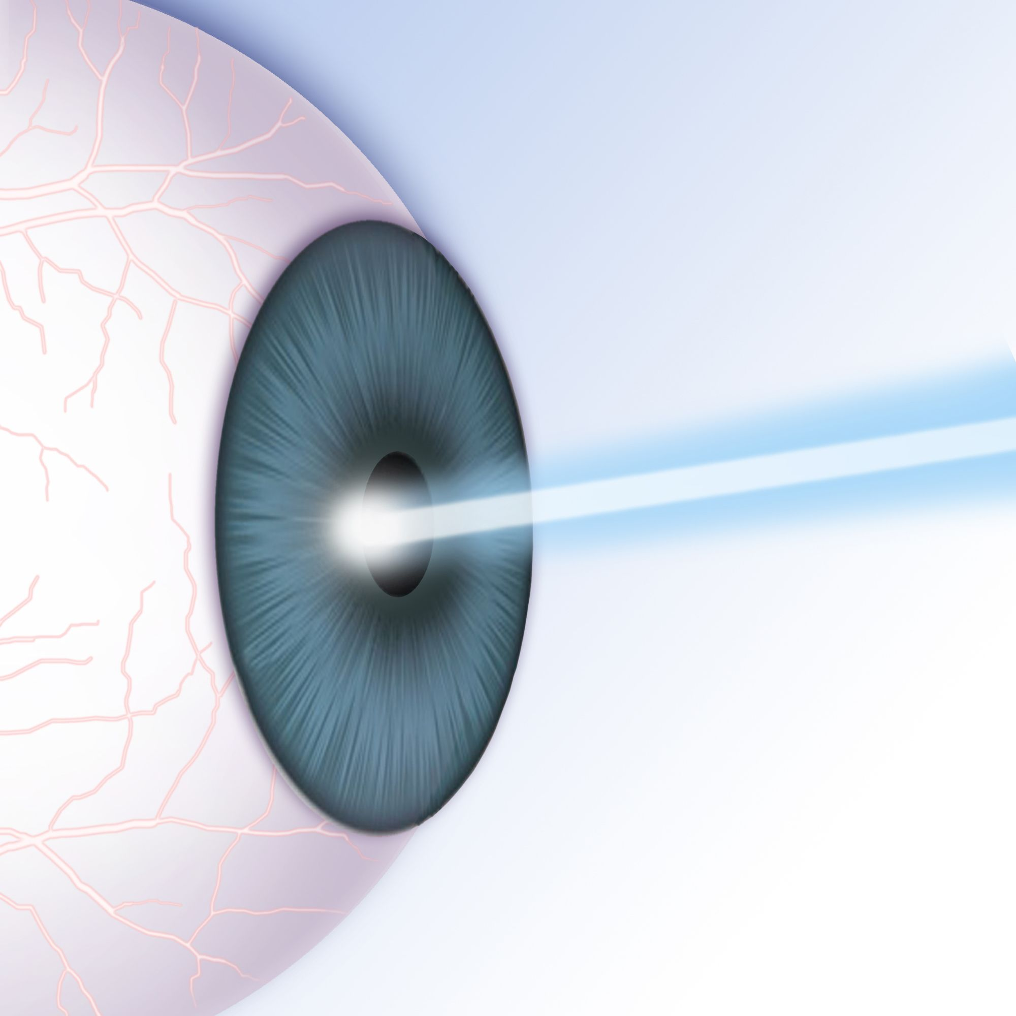 Illustration of a LASIK procedure