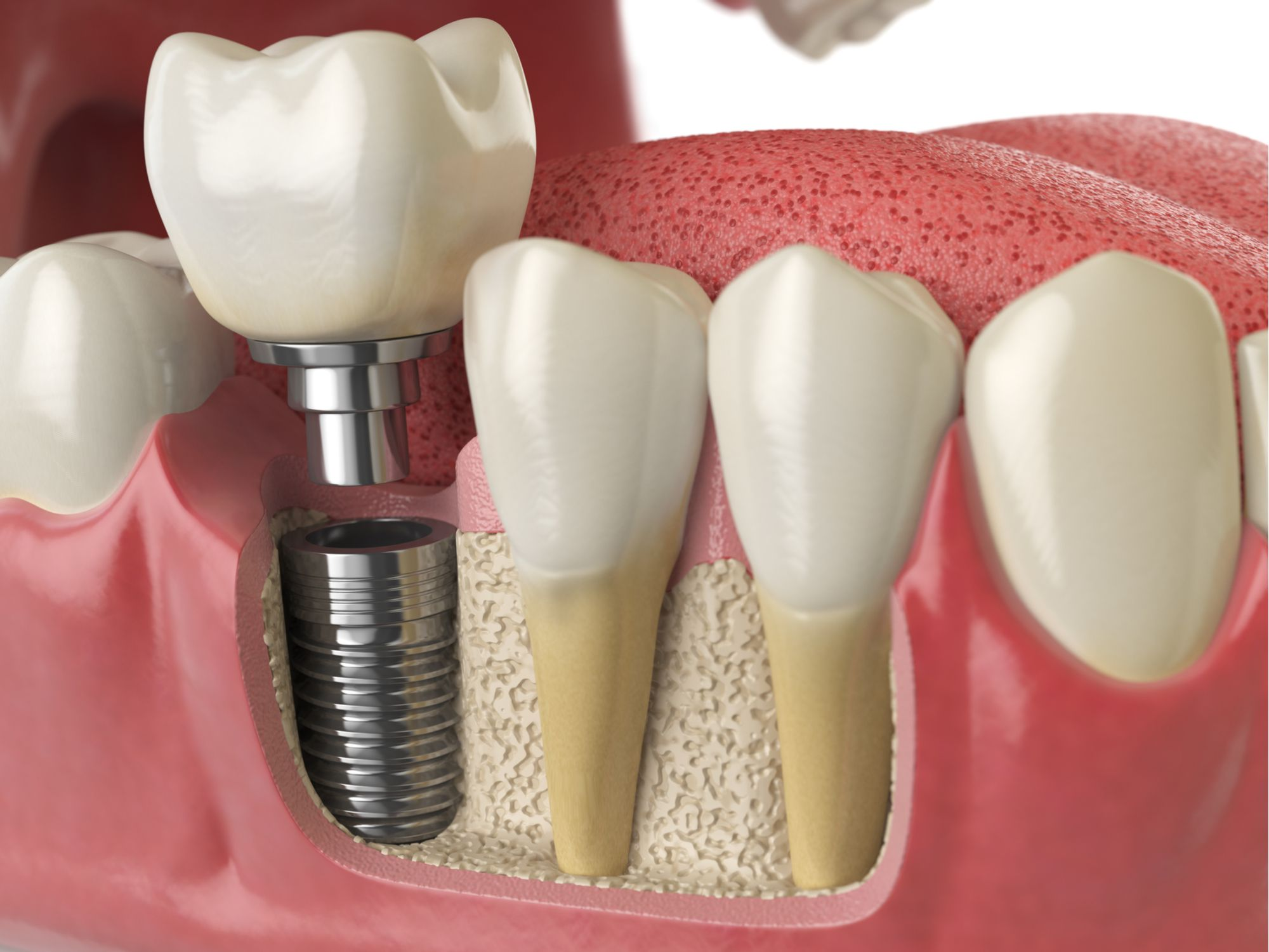 Implant-supported dental crown diagram