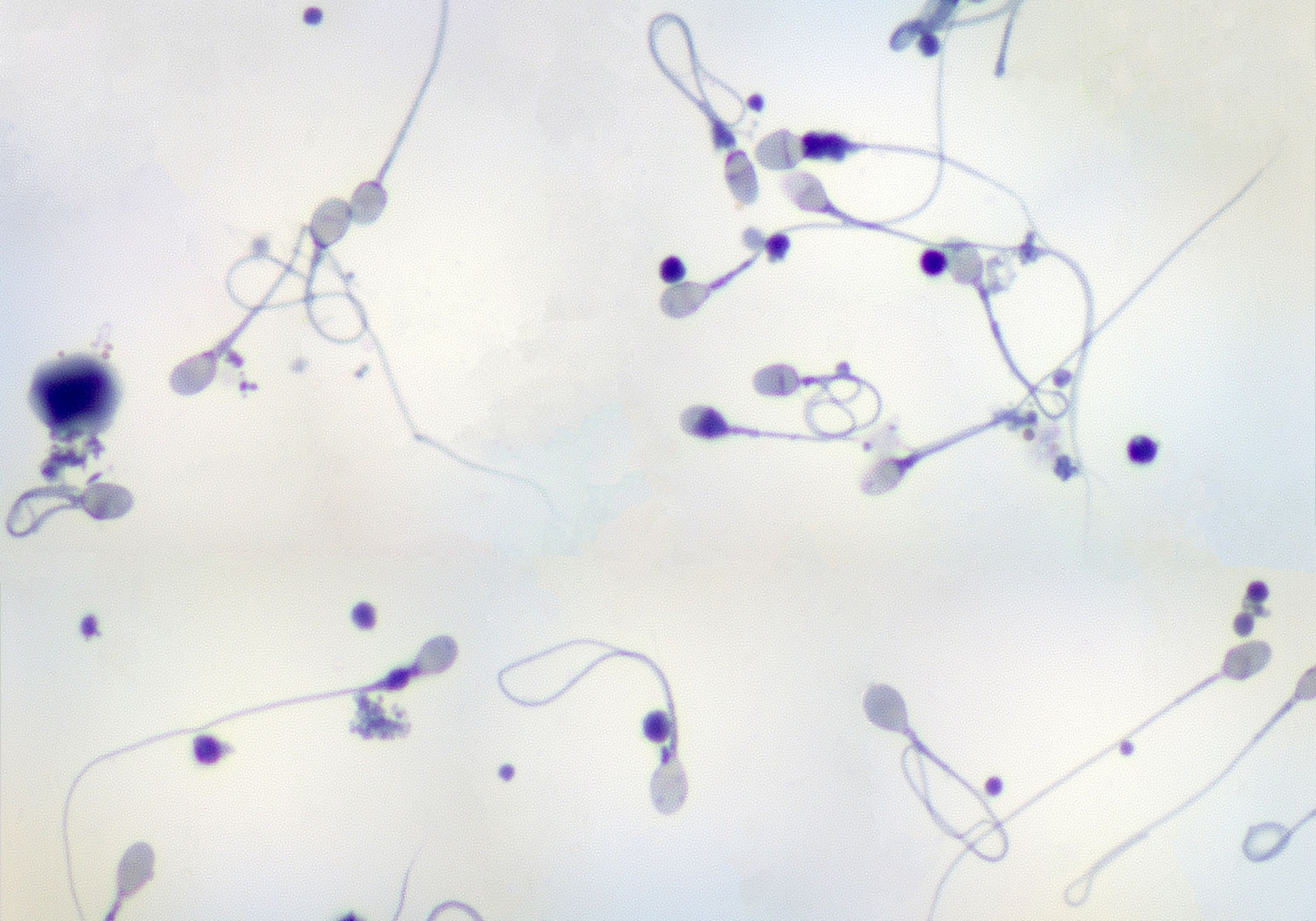 Sperm seen under a microscope