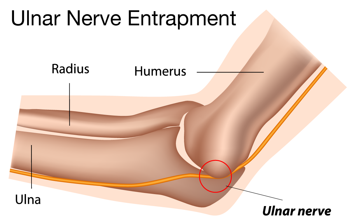 Illustration demonstrating how the ulnar nerve fits underneath the medial epicondyle of the humerus.