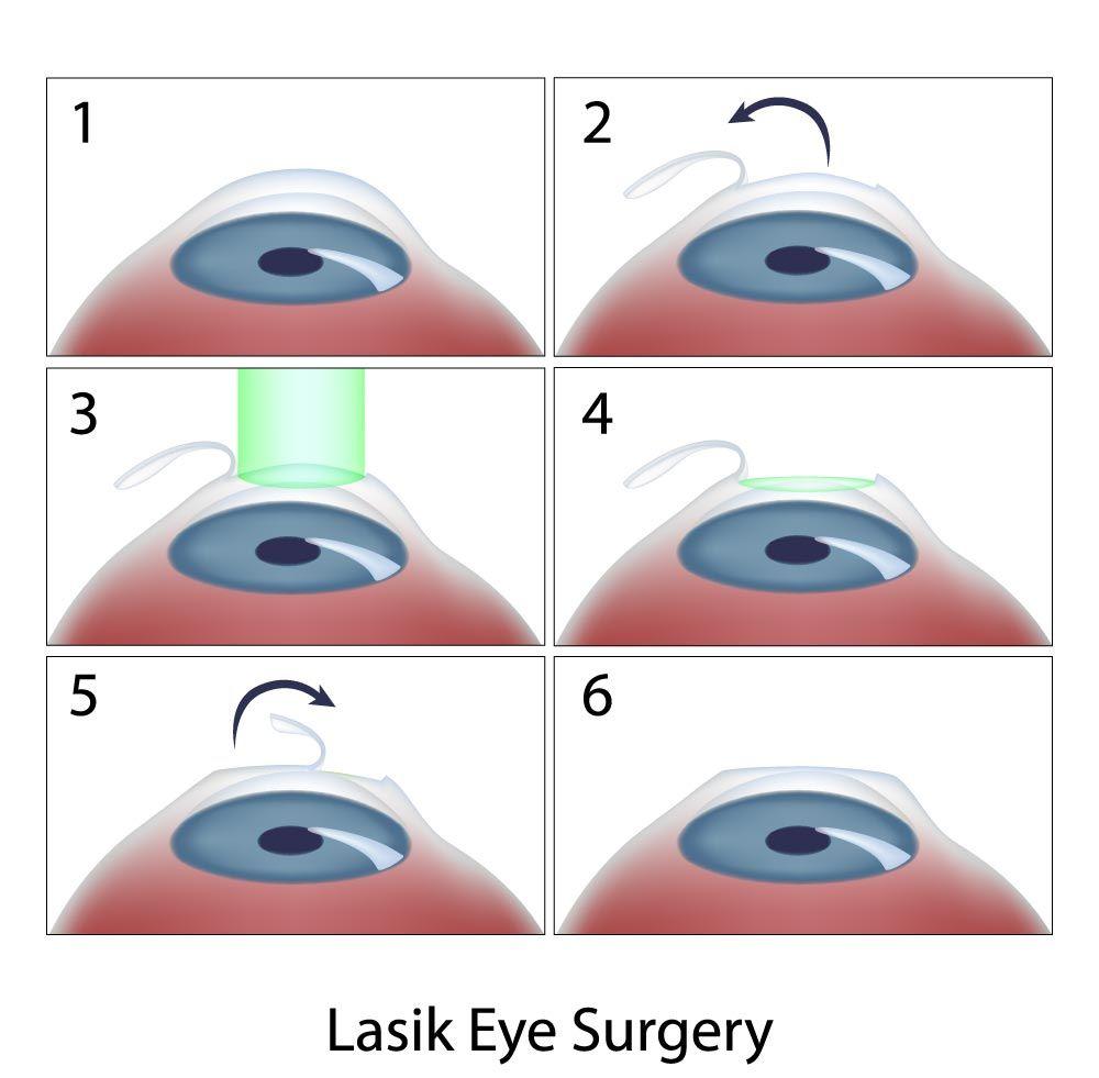 Steps of LASIK surgery