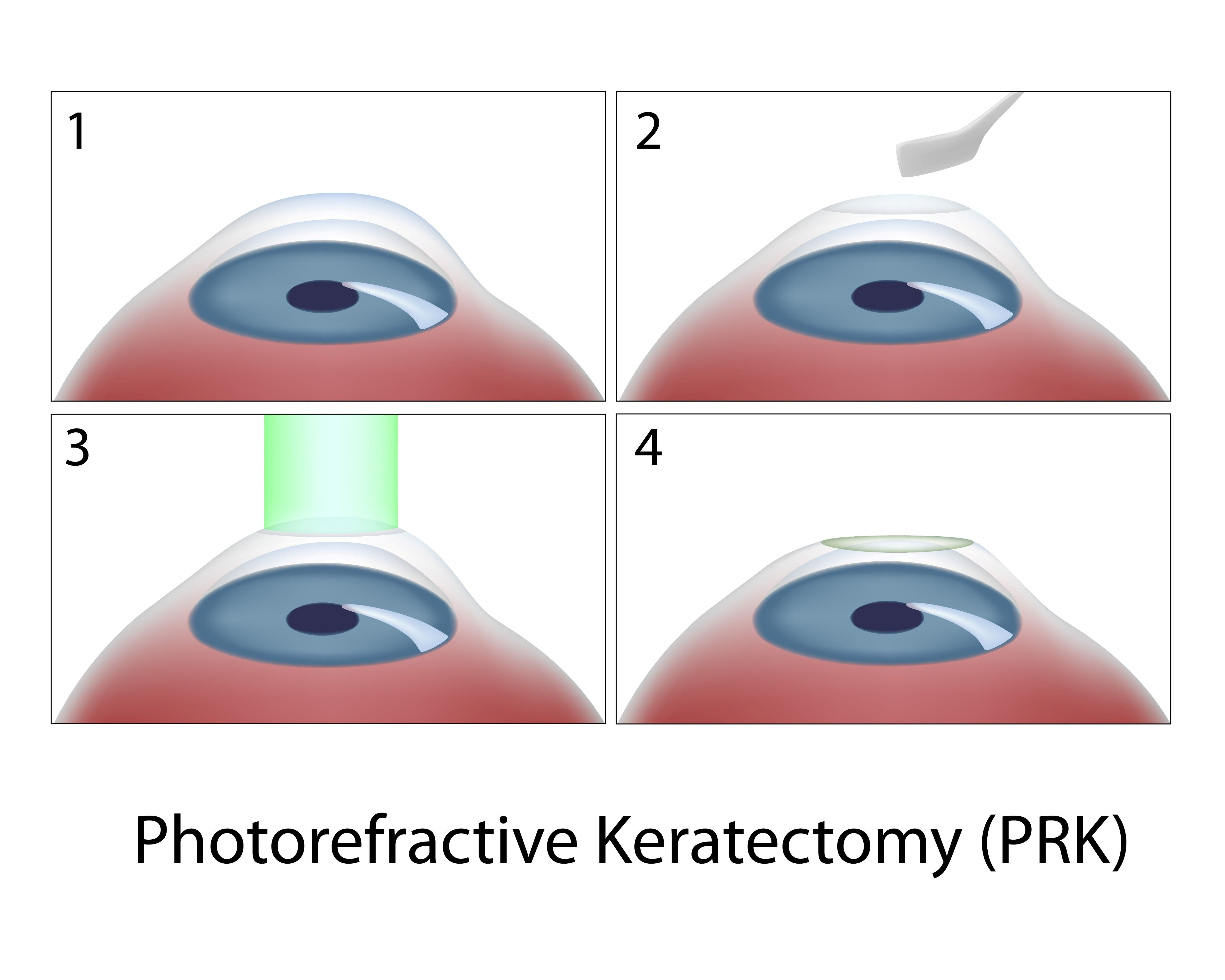 digital four-panel illustration of photorefractive keratectomy (PRK) procedure