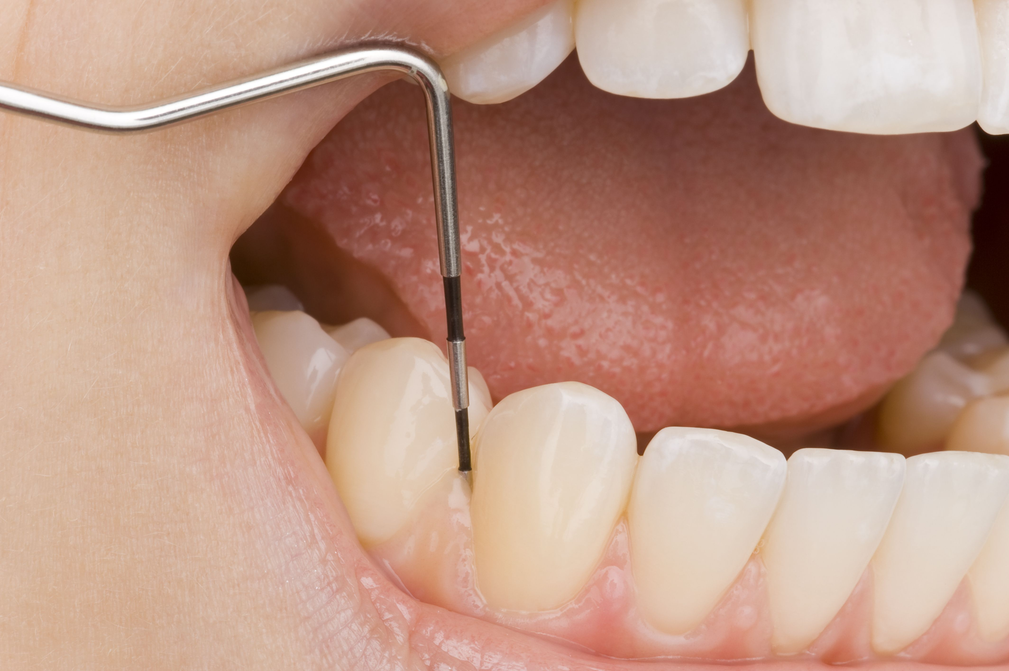 A person opening their mouth with a dental instrument touching a tooth