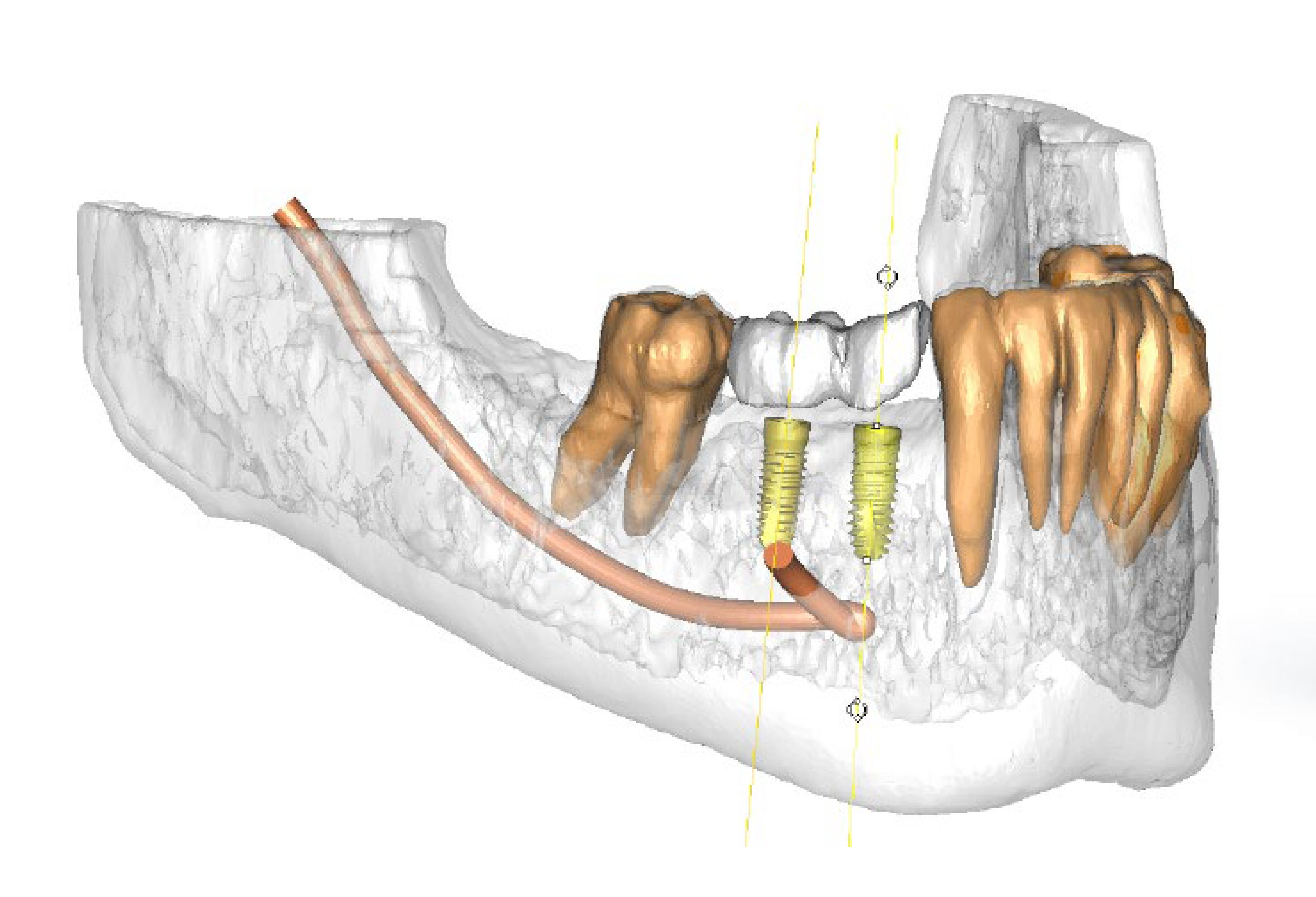 Implant dentistry planning technology