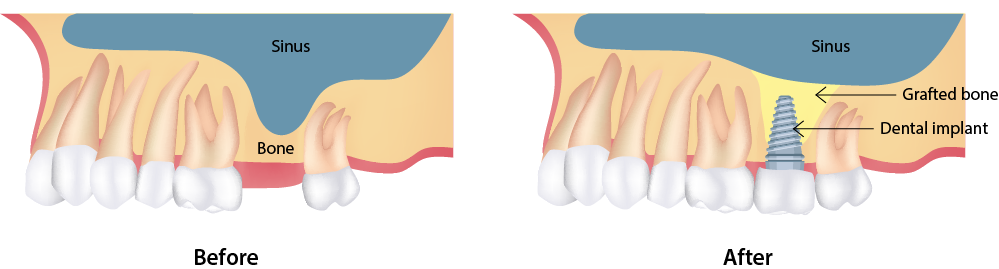 Illustrated comparison of jaw before and after sinus lift and implant placement