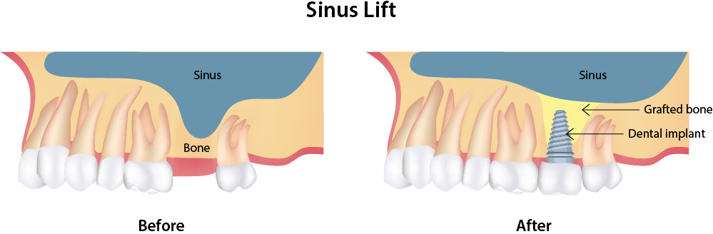 Diagram of before and after of bone grafting procedure