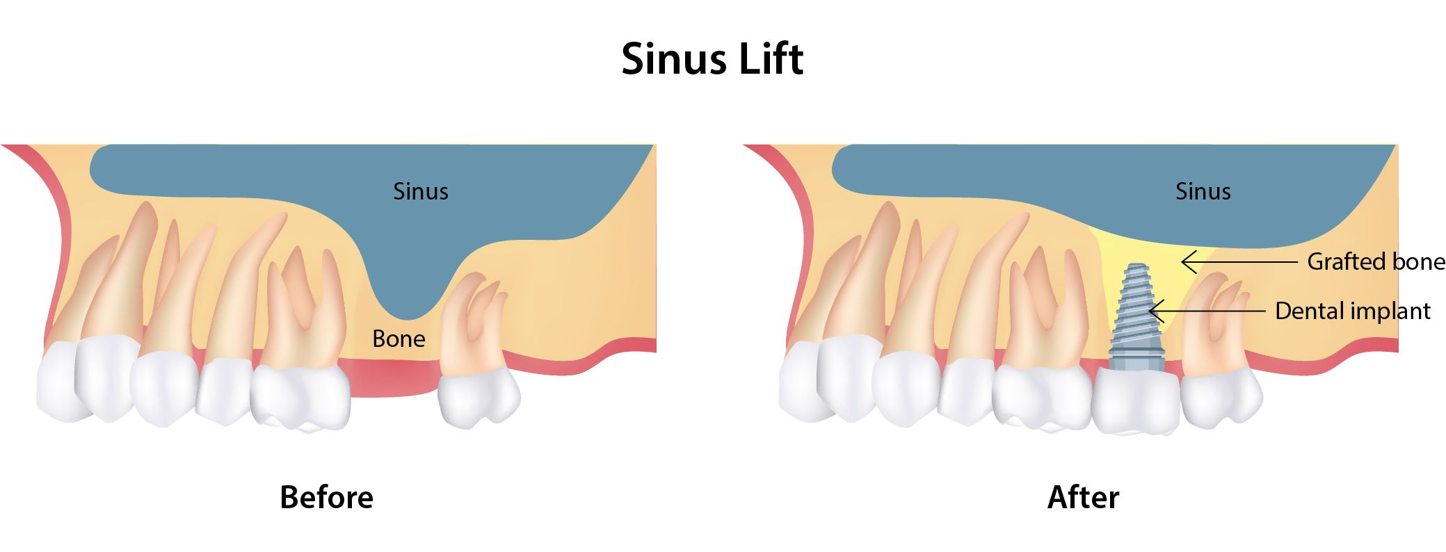 illustration of sinus lift before and after