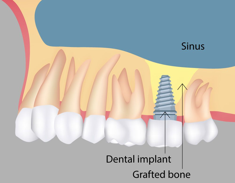 Diagram demonstrating how a sinus implant increases bone density in the upper jaw to better anchor implants.