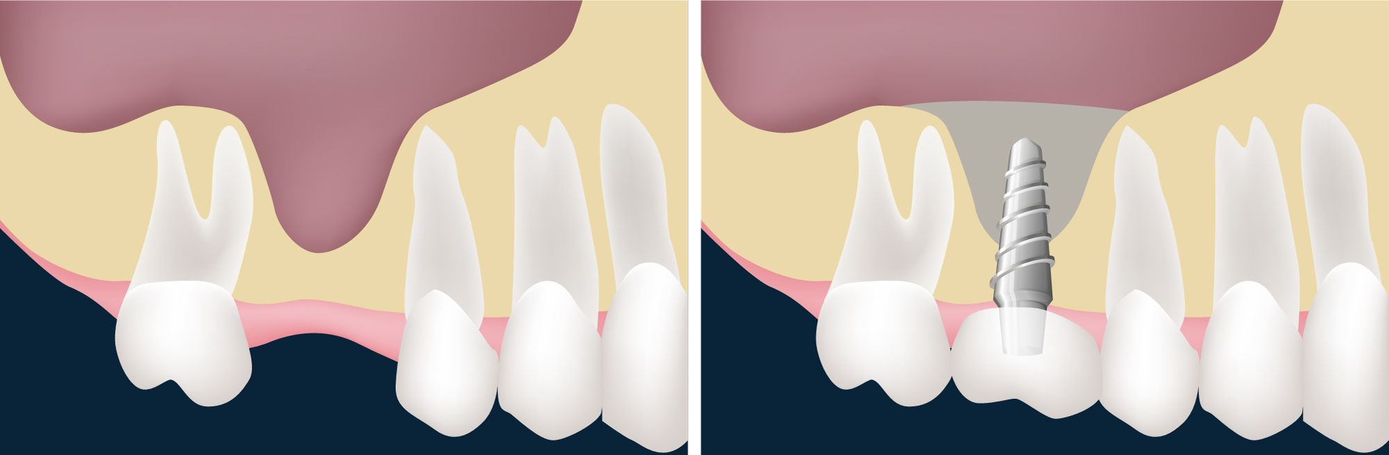 An illustration of a missing tooth and a dental implant