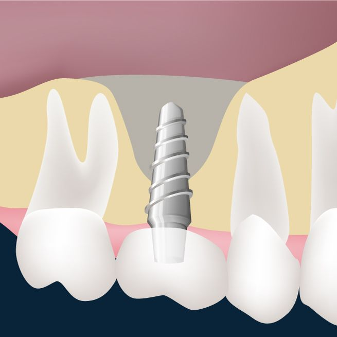 A dental implant placed in a tooth gap