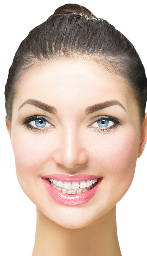 Woman wearing six month smile braces