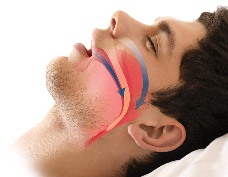 Man asleep with mouth open