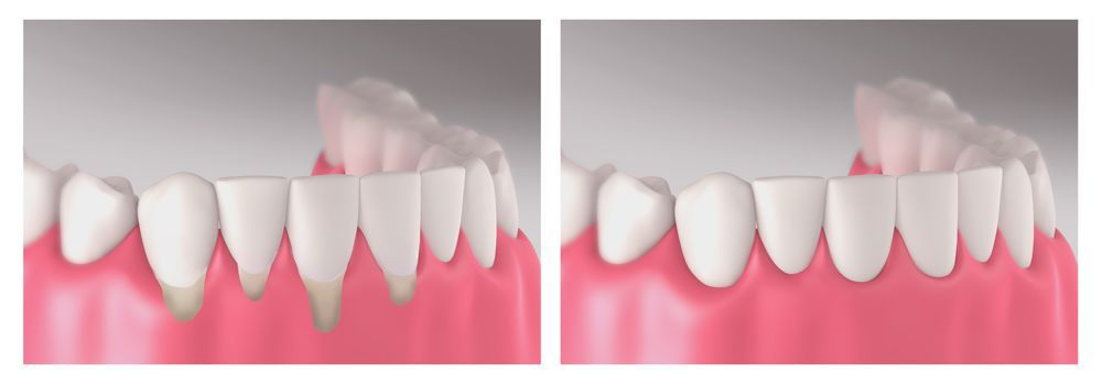 Gums before and after graft surgery