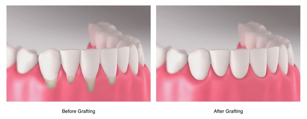before and after gum graft