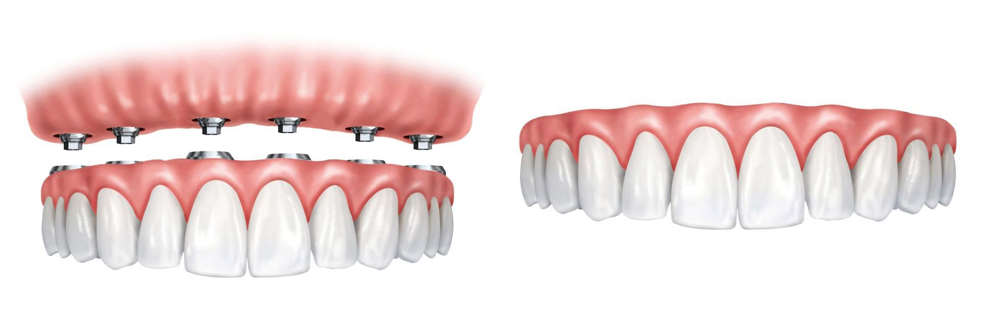 Illustration of a traditional vs. implant-supported denture