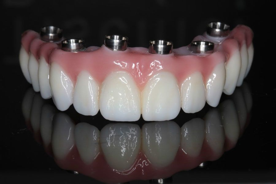 An implant-supported full denture