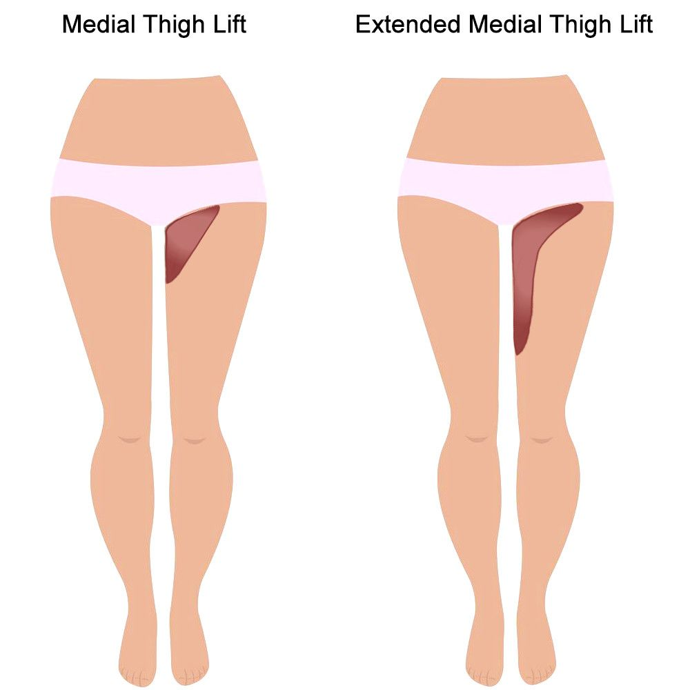 Illustration of a medial thigh lift and extended medial thigh lift.