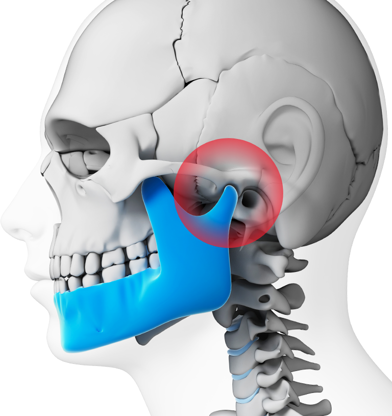 Side view of skull shows irritation near joint of jaw