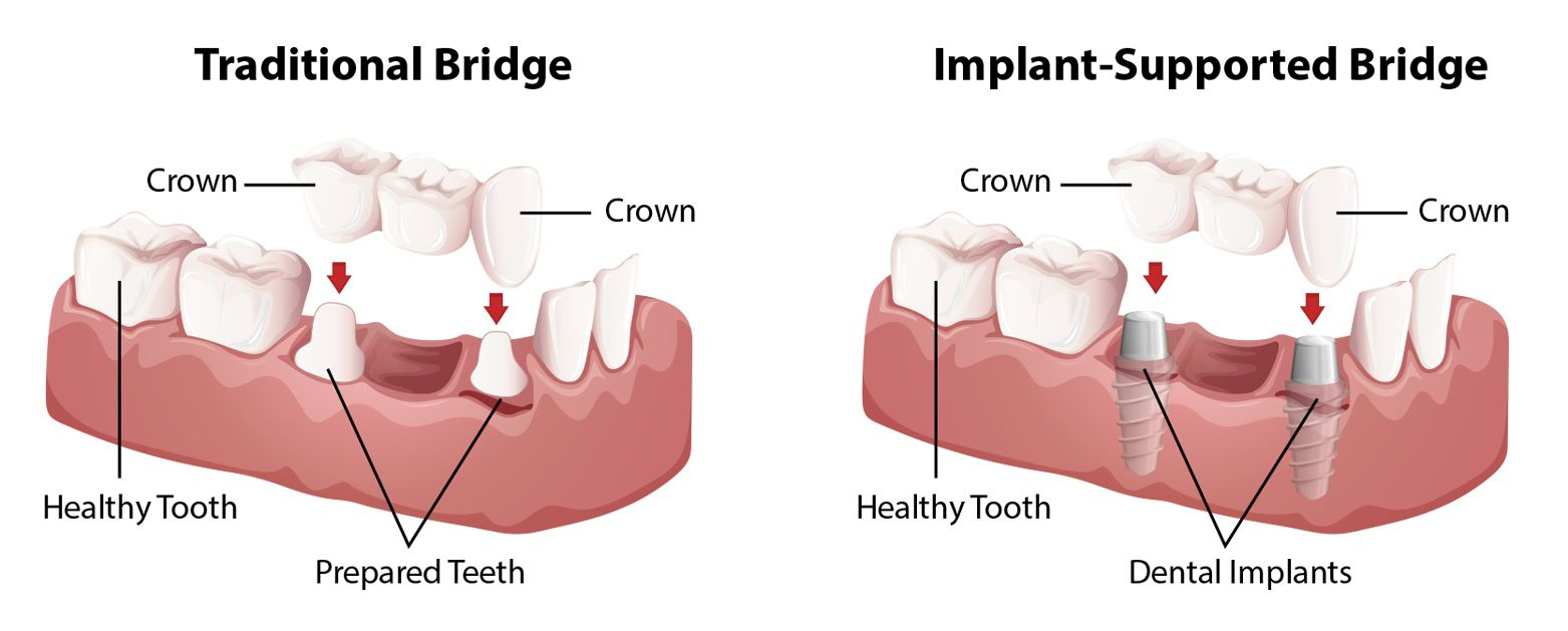 An illustration demonstrating the difference between a traditional dental bridge and an implant-supported dental bridge