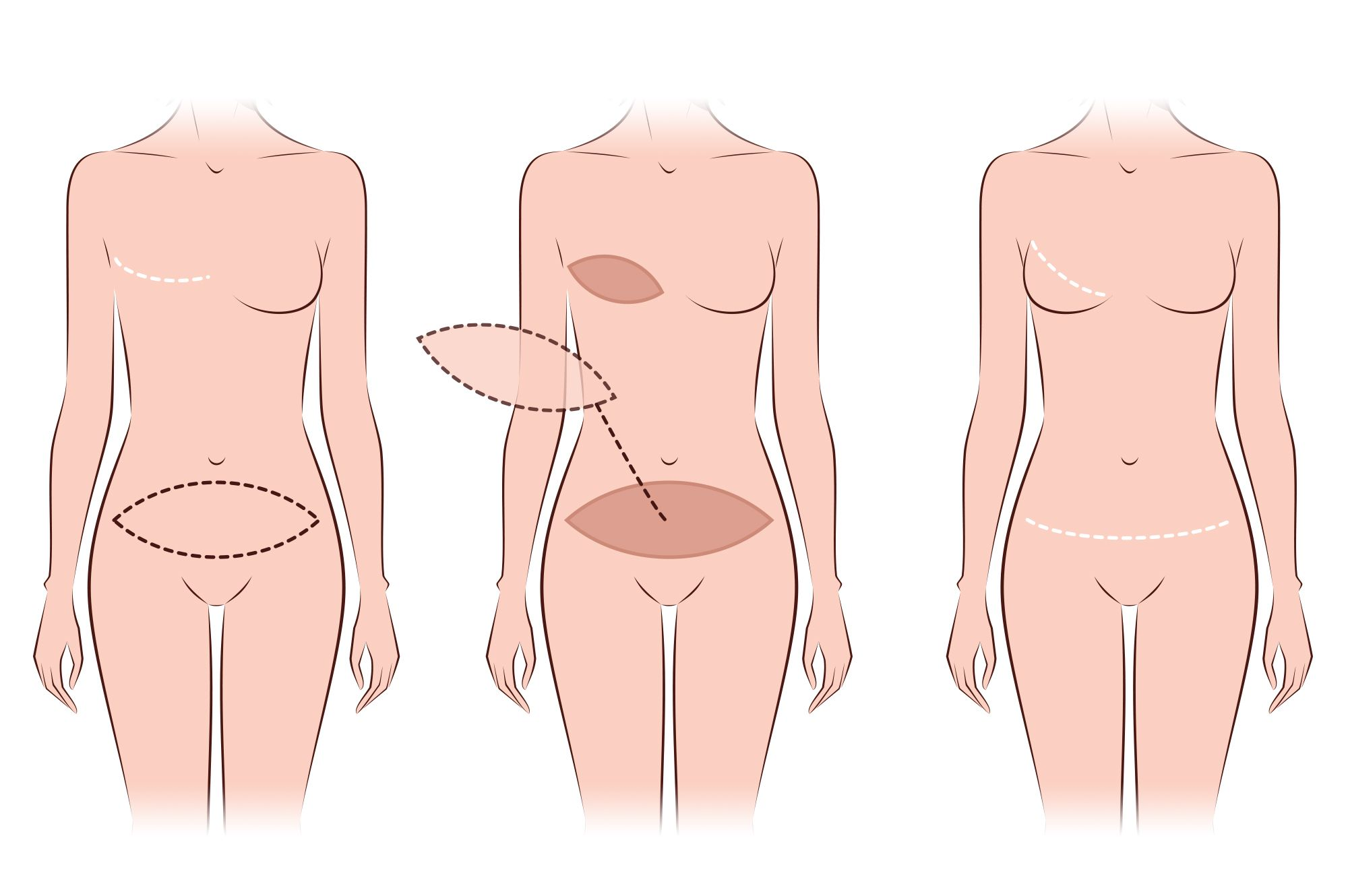 Breast Reconstruction Flap Techniques