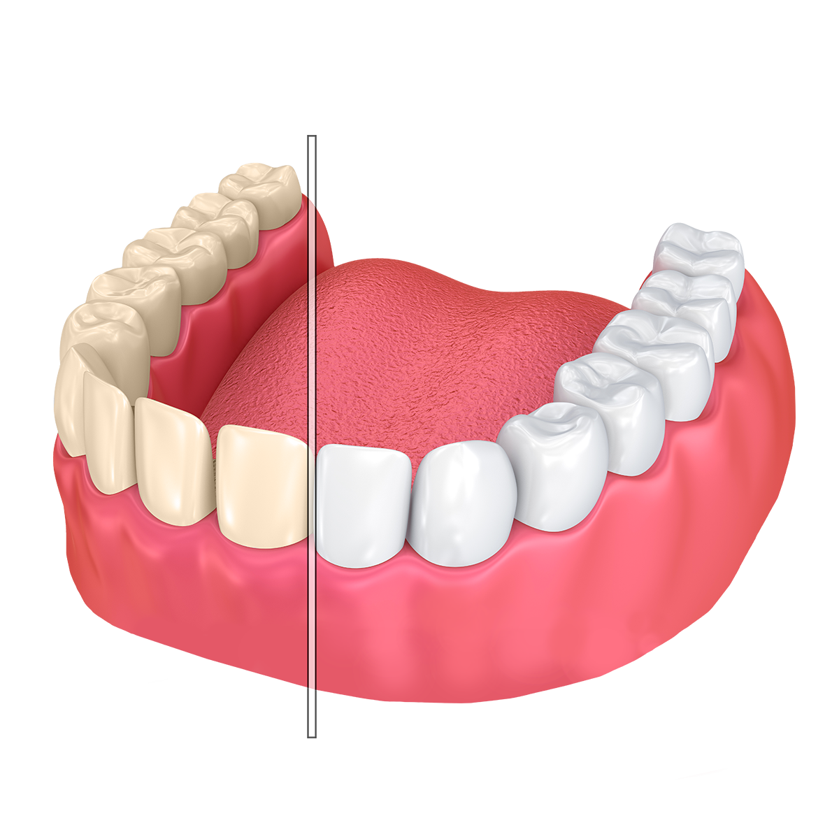 Discolored teeth and those treated with teeth whitening
